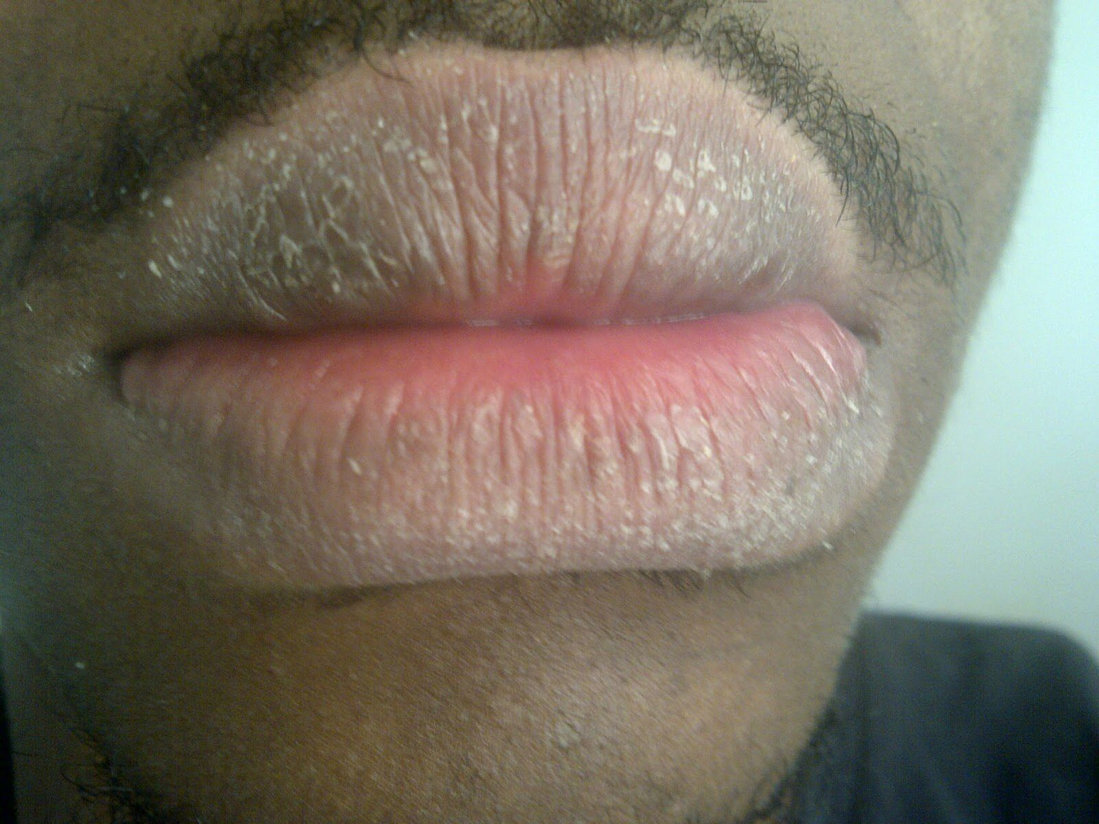Chapped Lips Non White Person Note How Skin Breaks Up And Colors