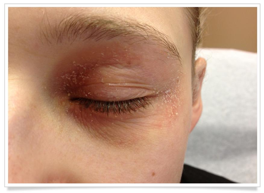 Eyelid Dermatitis (With images) Eyelid dermatitis