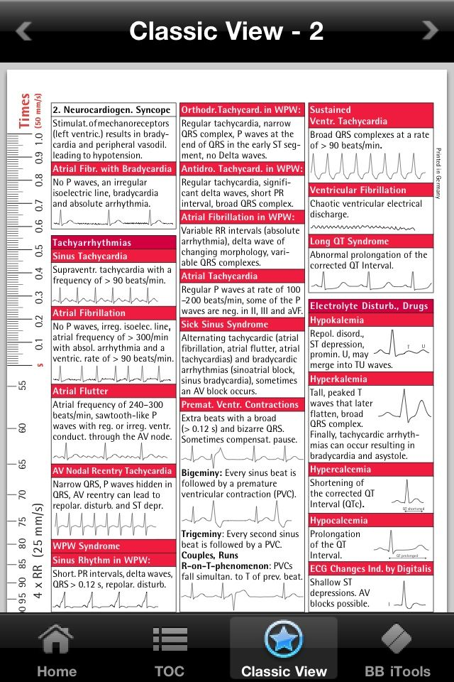 Nursing Schools Near Me >> ekg interpretation cheat sheet | ECG i-Pocketcards – comprehensive pocket reference guide for ...