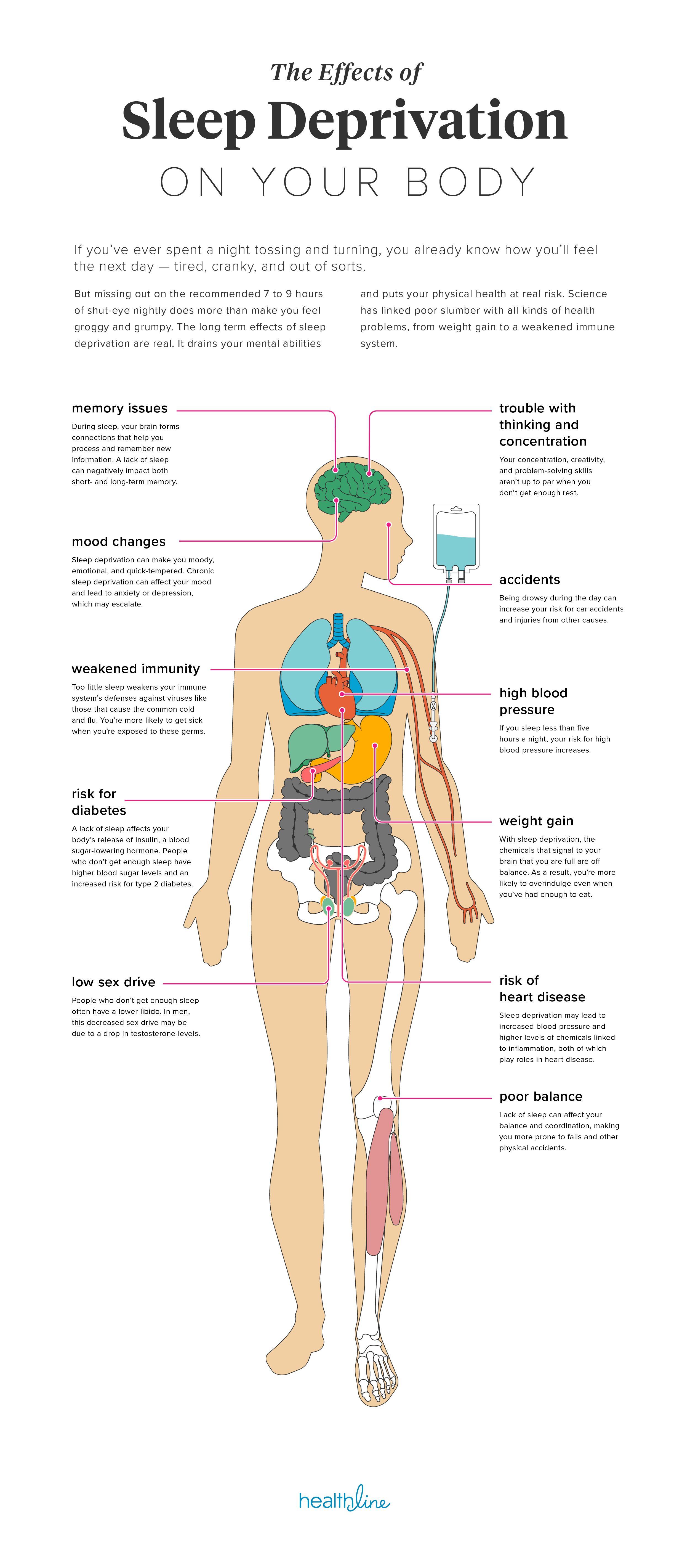 11 Effects of Sleep Deprivation on Your Body | Pinterest | Sleep ...