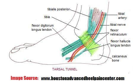 The Tarsal Tunnel Tibialis Posterior Tendon Flexor Digitorum