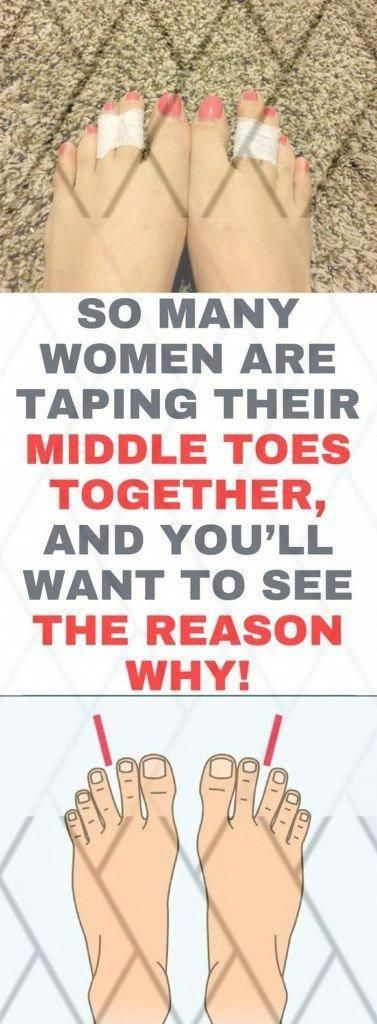 healthy and fitness: So Many Women Are Taping Their Middle #toes Together, And You�ll Want To See Th...