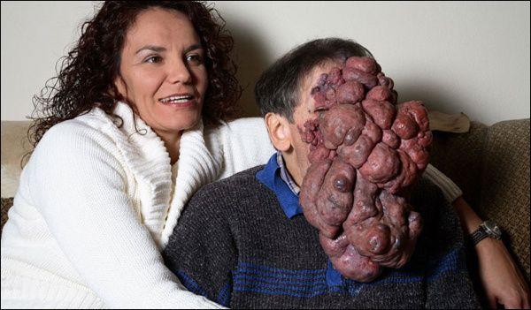 Facial tumor jose images 552