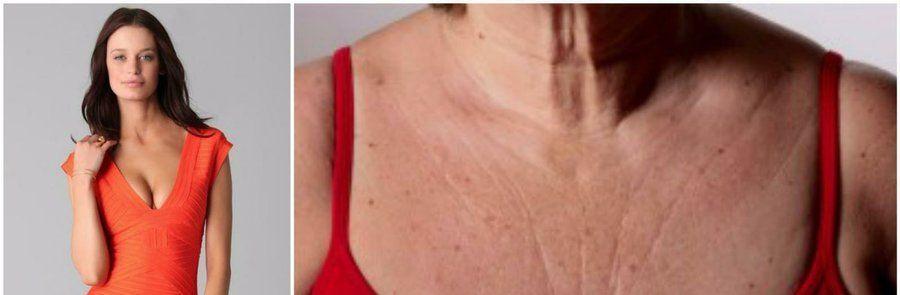 Ya sea que tengamos manchas, granitos, arrugas, verrugas o estrías el escote femenino en muchas ocasiones suele ocultarse por falta de cuidados.Te traemos ésta increíble mascarilla para lucir un escote perfecto de ahora en más TE PUEDE INTERESAR: ¡Cuidado! ¡Mira por qué no deberías depilar…