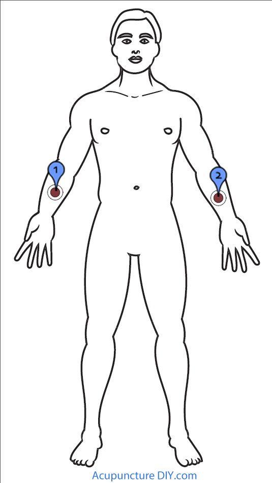 acupuncture pour hemorroides