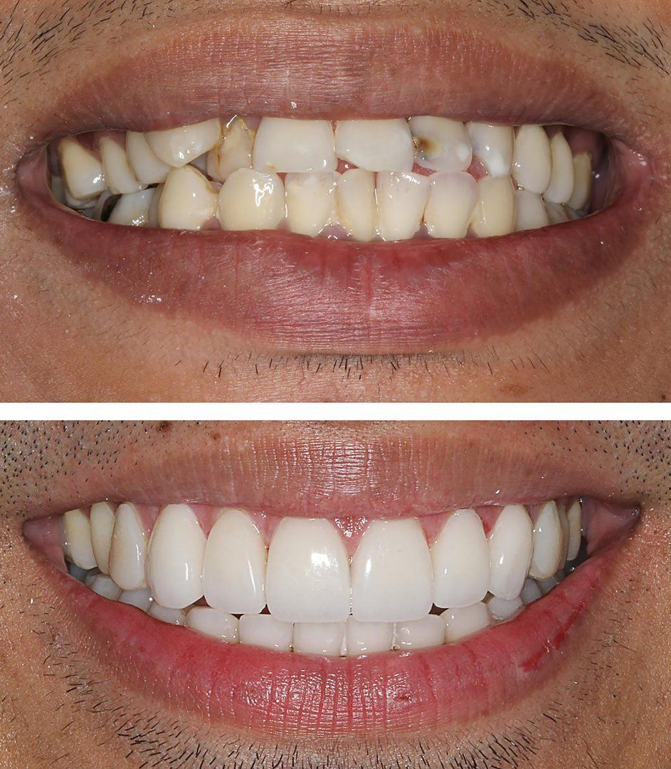 Porcelain Veneers or Braces? Make the Right Choice