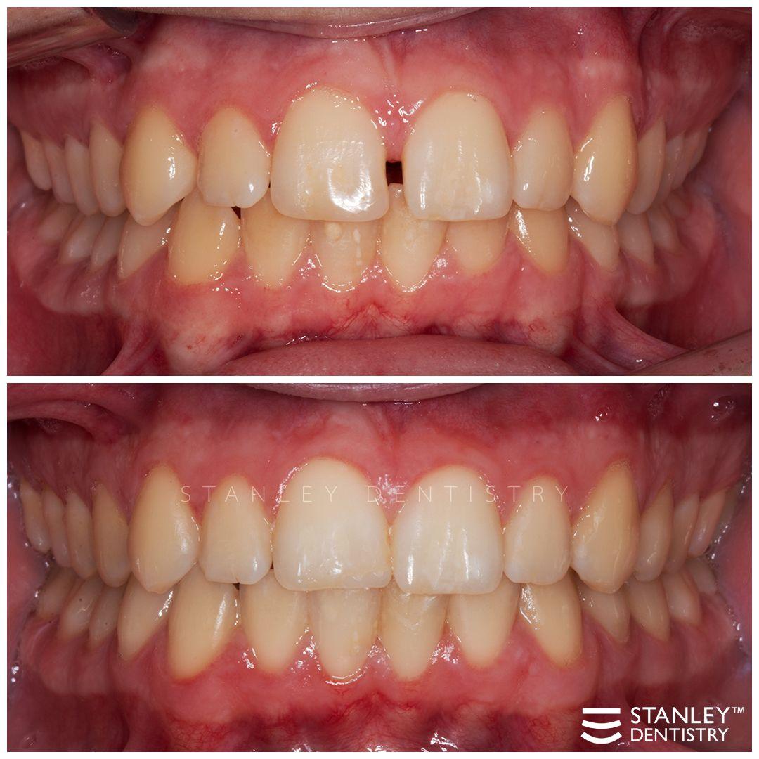 Braces before after orthodontics orthodontist