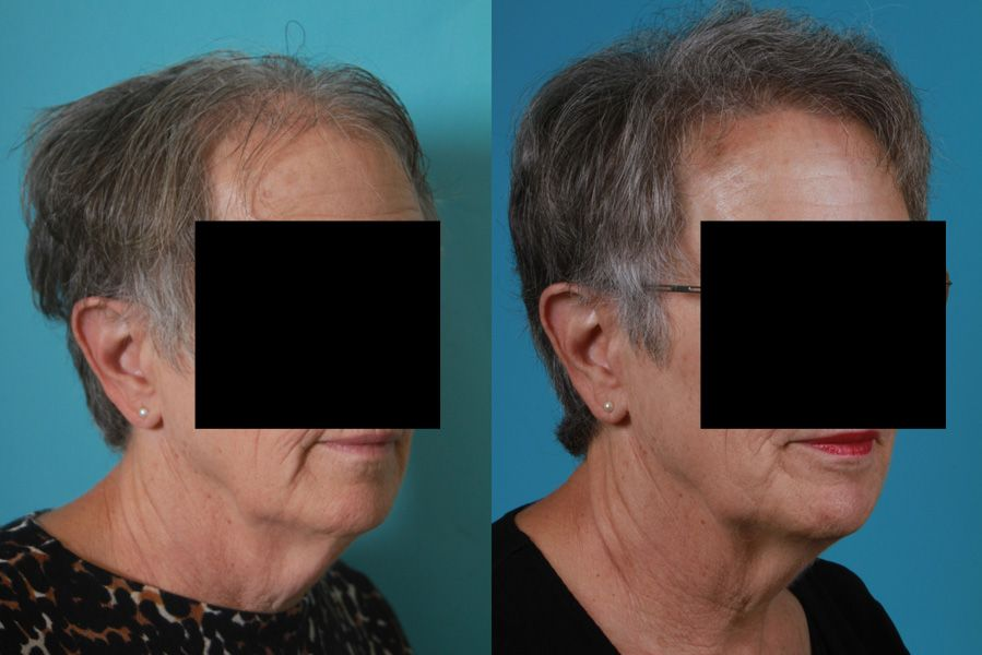 Park Art|My WordPress Blog_Female Fue Hair Transplant Before And After