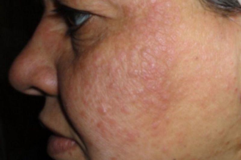 facial mask rash