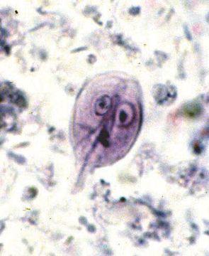 Giardia stool sample