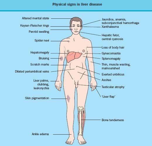 Liver Failure Signals