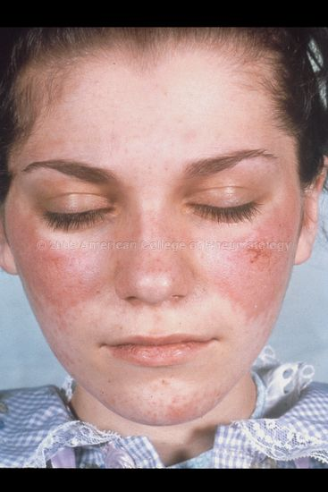 Another Malar Rash Presenting Discoid Lesions Rash On Face