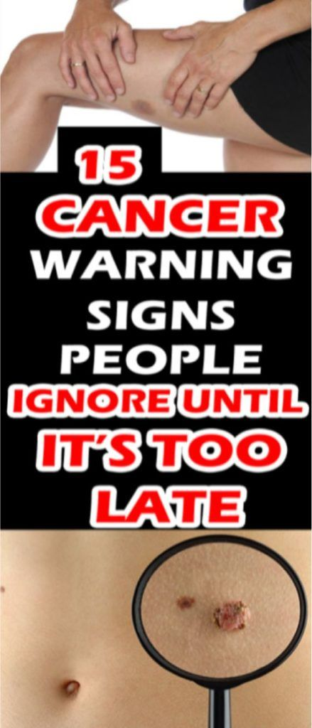 15 Cancer Warning Signs People Ignore Until It's Too Late!!!