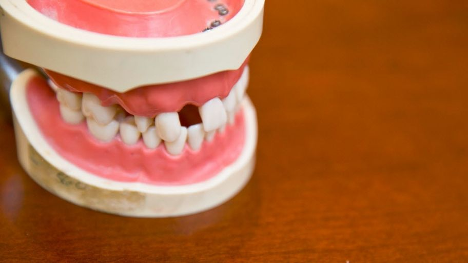 Is it worth the cost to fix gap teeth dental bridge