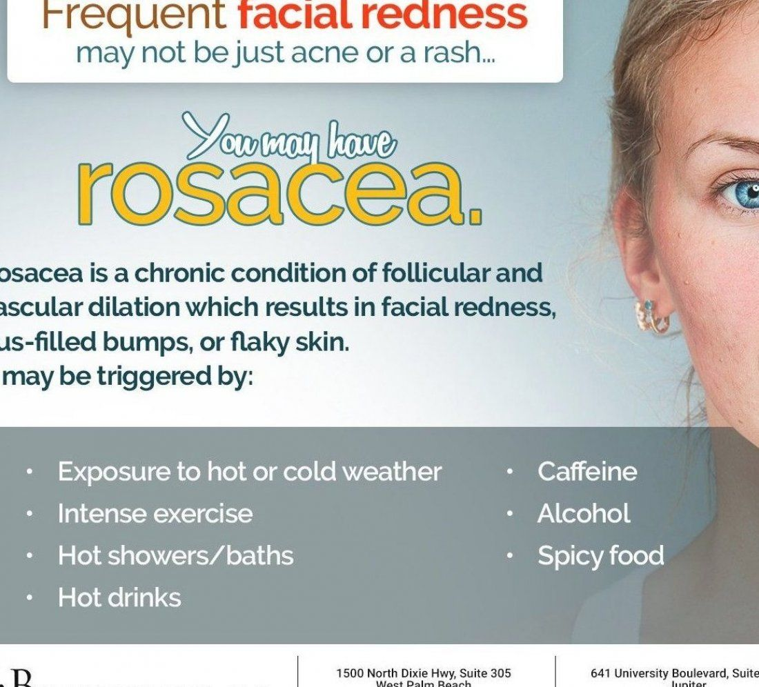 You can control rosacea  We can help you identify your triggers to make the right lifestyle changes and start prescription treatments  Give Beer Dermatology a call at  561  600-4848    561  430-2767 today  #facialredness #rosacea #westpalmbeach #FL #beerdermatology #caffeine #alcohol #exercise #spicyfood #hotdrinks #hotbath #winter #flakyskin