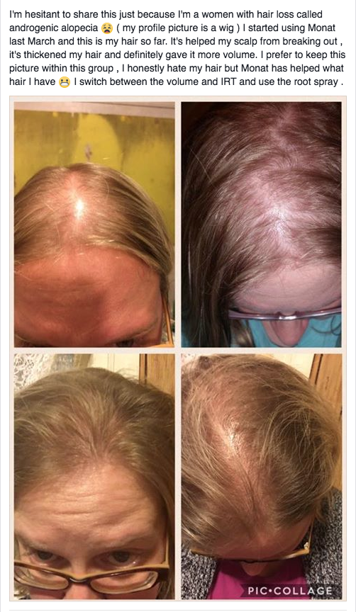 Alopecia Patients Are So Excited Over Monat S Natural Hair Care No More Harsh Chemicals That Burn The Scalp Help Hair Loss Aging Hair Care Hair Care Treatment