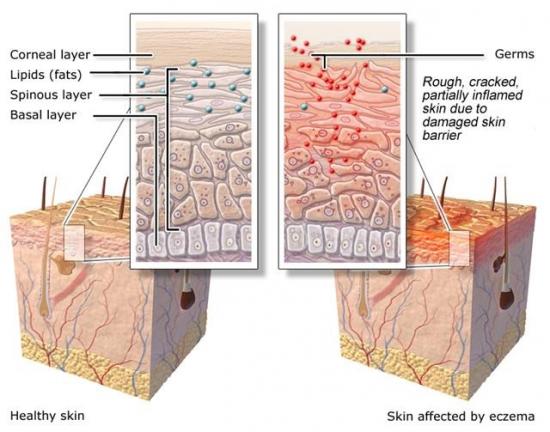 e60283b222eea7b4a2129a188e47cc49 eczema and the associated struggles what do you think when you