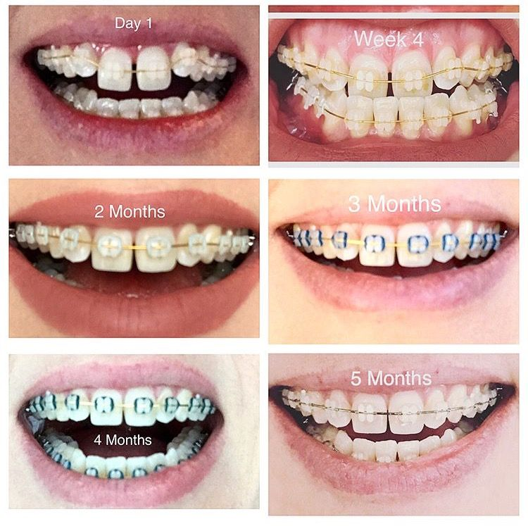 Braces Before And After Time Lapse Youtube