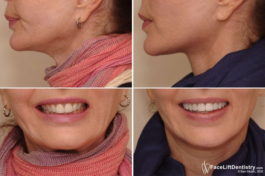 Face lift dentistry explained face lift dentistry