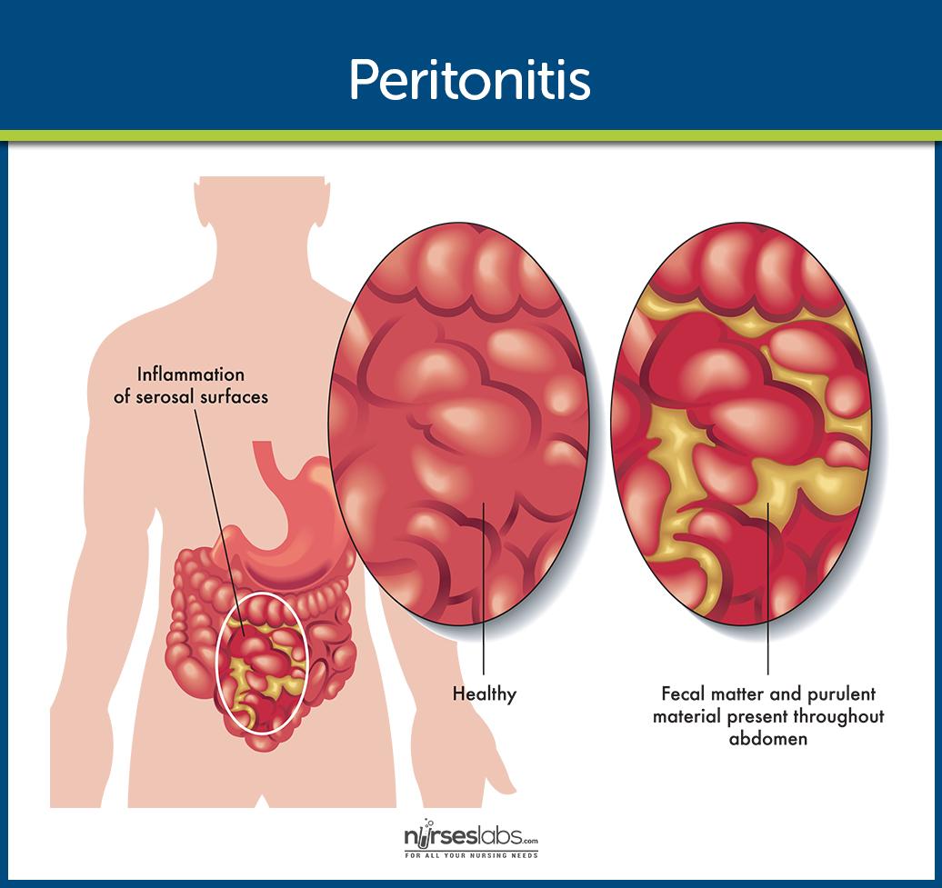 Peritonitis | Pinterest | Serous membrane, Nclex and Student nurse