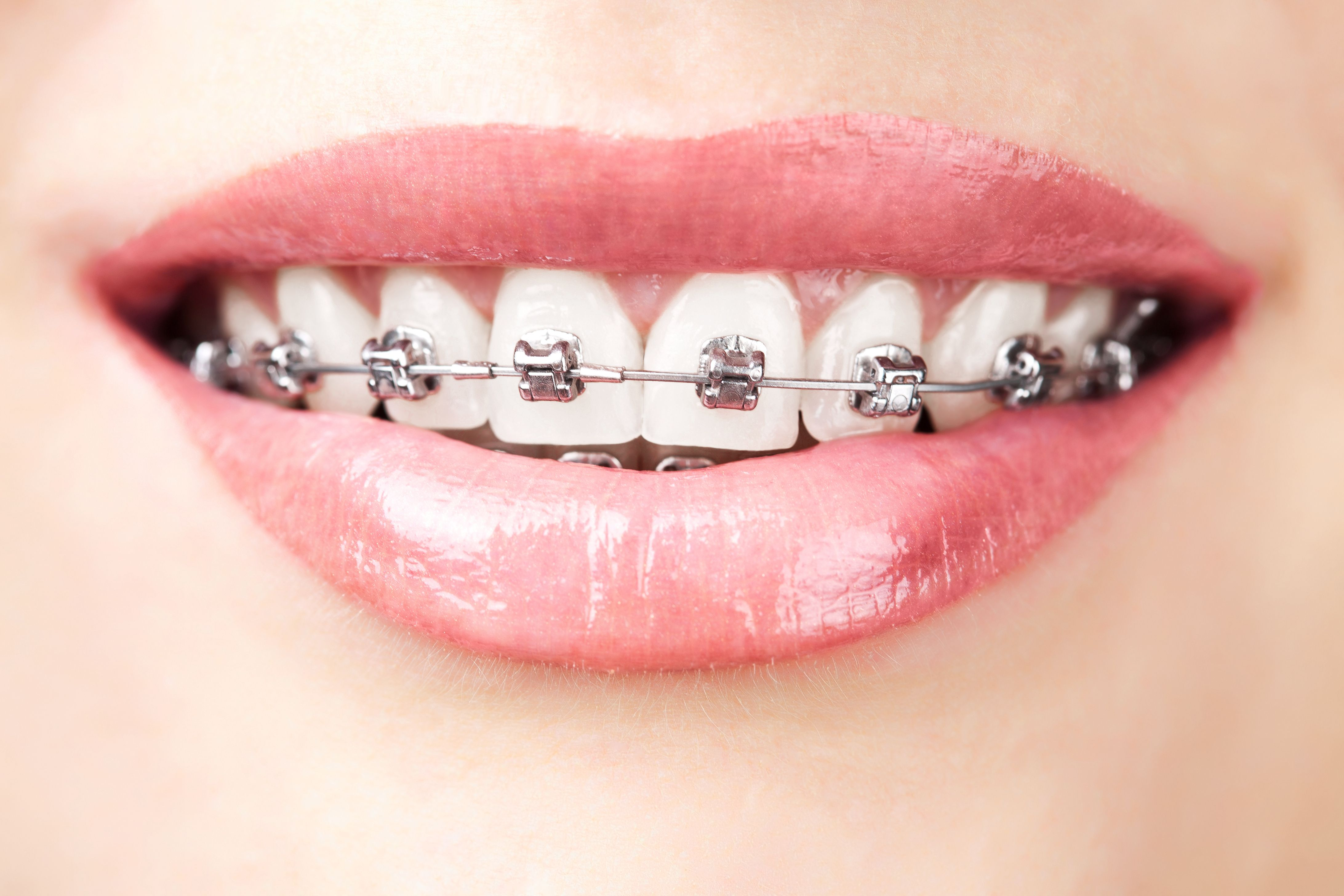 Orthodontist In Charleston Sc Space Age Wire And Braces Dental Braces Teeth Braces Teeth Straightening
