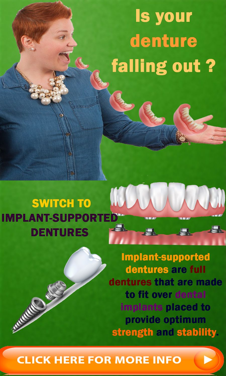 Denture Implants Mississauga ON Implant Supported