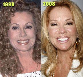 Kathy Lee Kathie Lee Gifford Kathie Lee Plastic Surgery