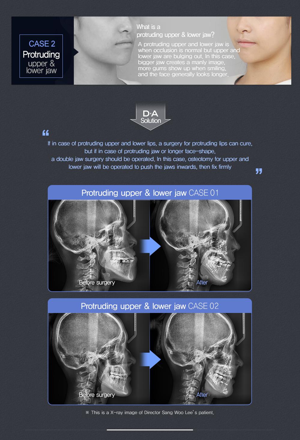 Pin by DA Plastic Surgery Clinic on DA Double Jaw Surgery | Pinterest