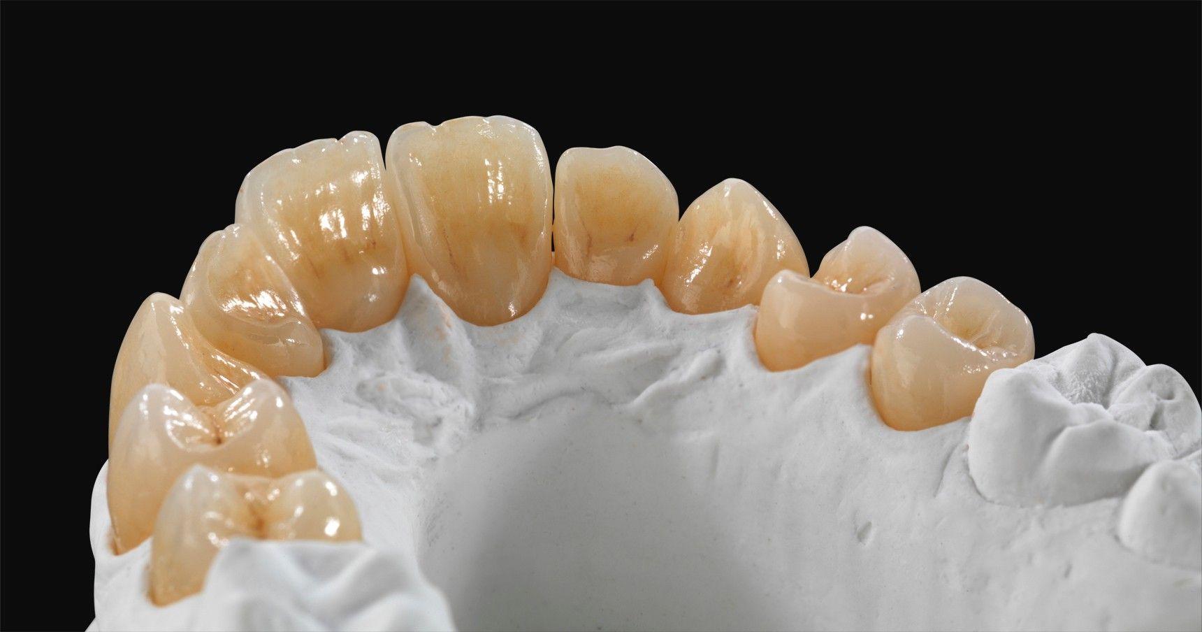 Ceramics Ceramill Blog Dental Lab Dental Ceramics