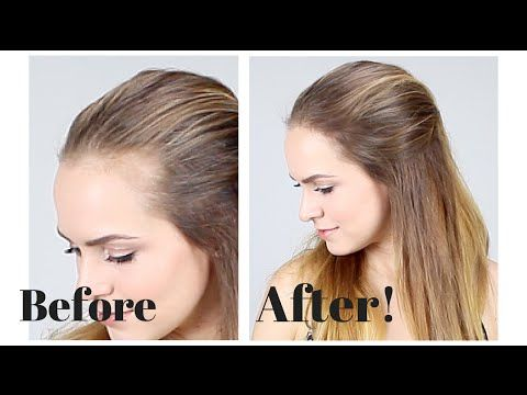 Make A Receding Hairline Disappear Instantly With 4 Easy Tricks #fullerponytail