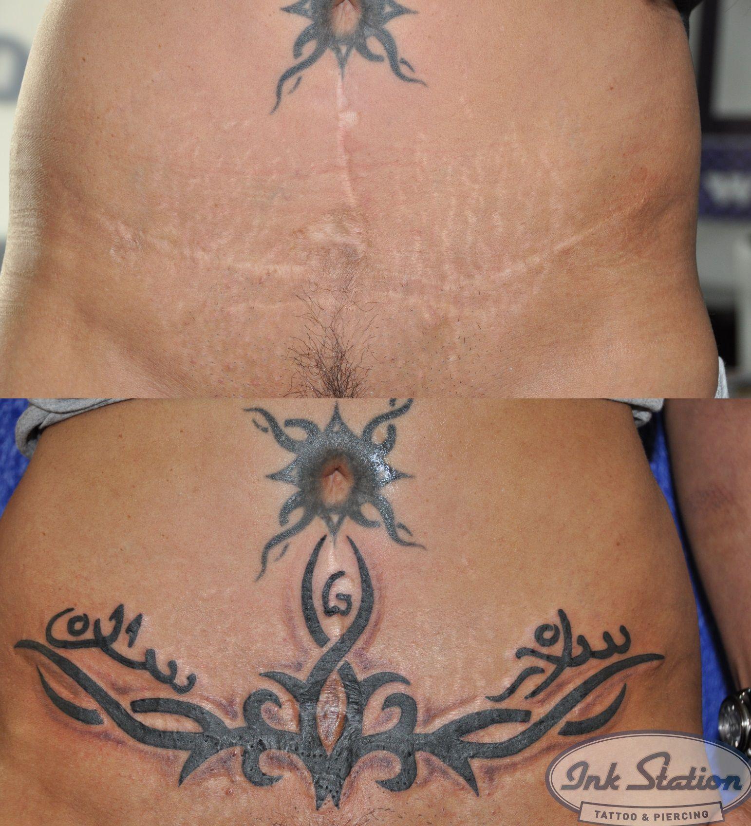 Pin von Miro Prolic auf Tatoo   Narben, Cover ups tattoo