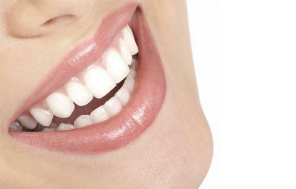 Denti bianchi con l'aceto di mele | Beauty&Health | Best