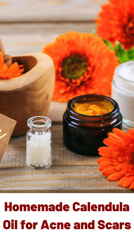 Amazing Healing Calendula Benefits for Skin Calendula
