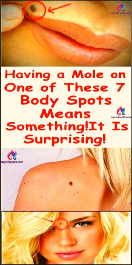 IF YOU HAVE A MOLE AT ONE OF THESE 7 PLACES ON YOUR BODY ...