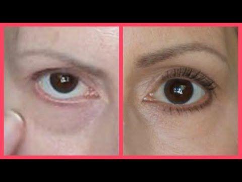 e62c49003541b6f040b26bacc8d0d5a8 - How To Get Rid Of Black Eyes From No Sleep
