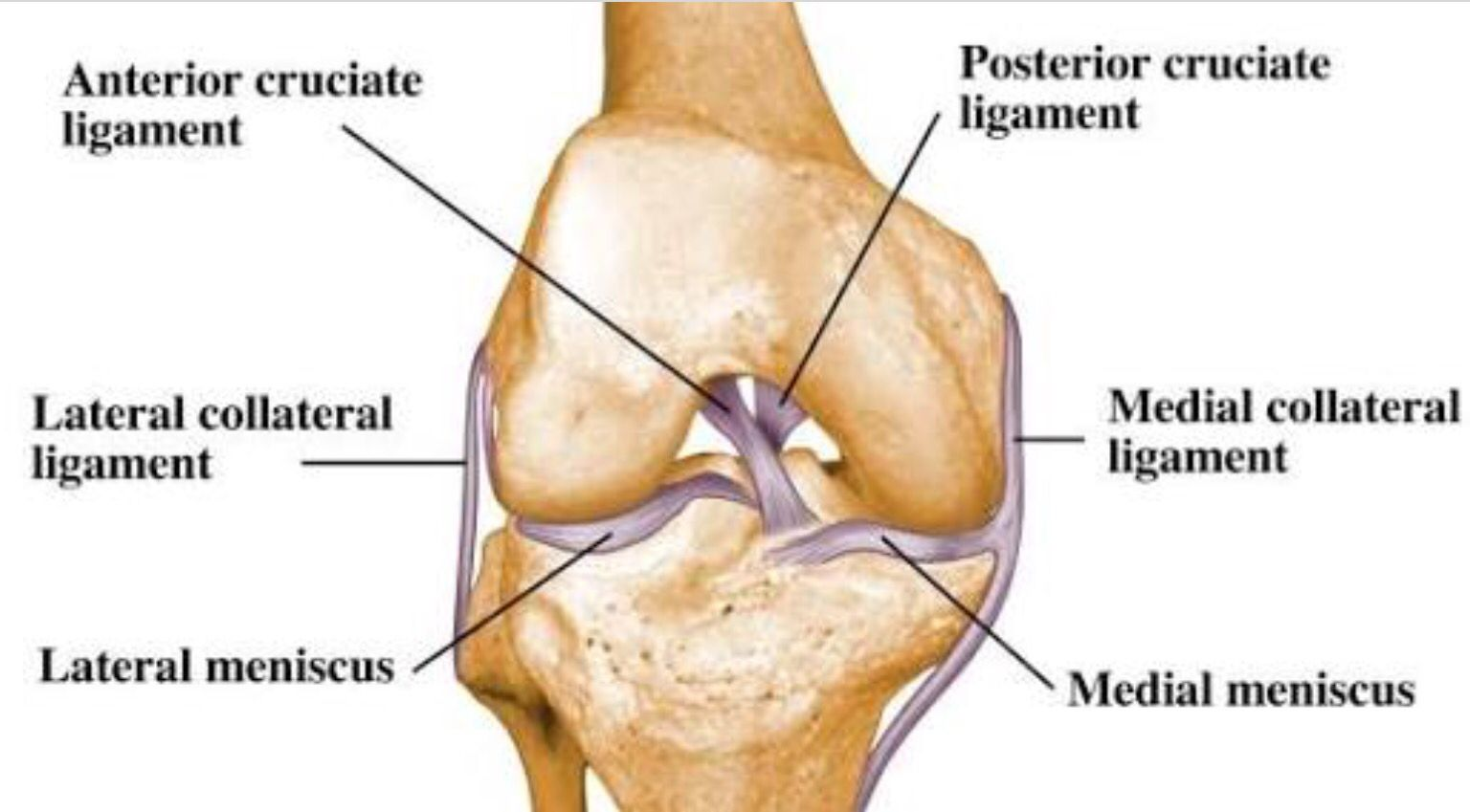 The Lateral collateral ligament (LCL) is on the outside of the knee ...