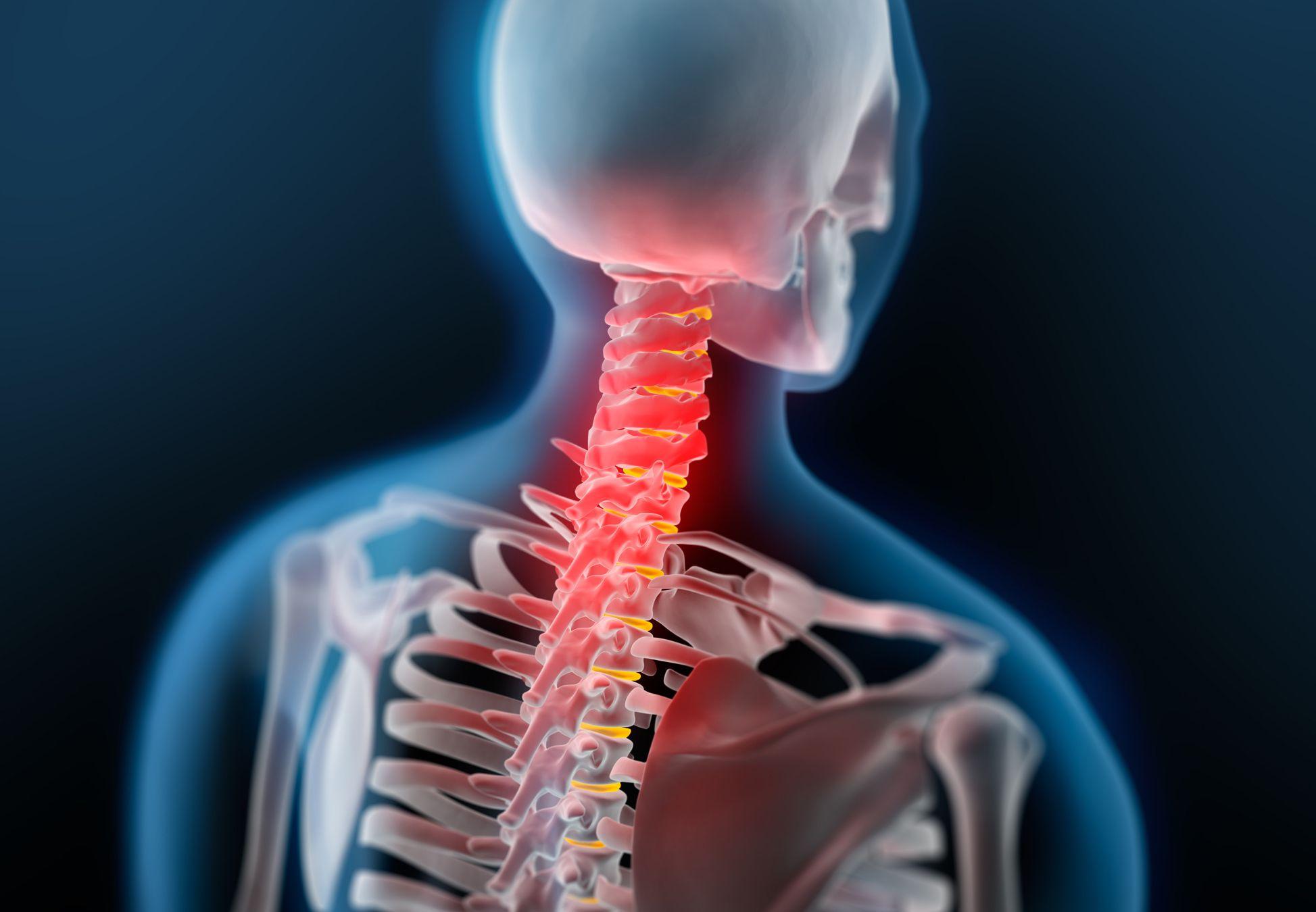 Schmerzt Der Nacken Kann Es Am Kopfkissen Liegen Einfach Gesund