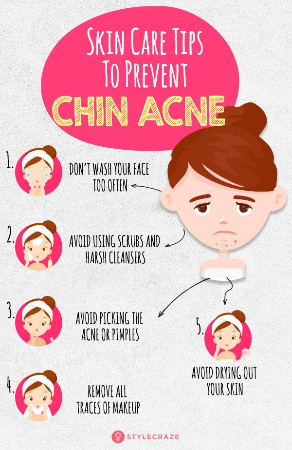 Why Do You Get Chin Acne? How To Deal With It in 2020