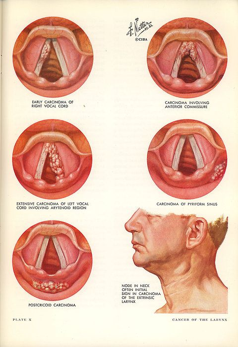 Vocal cord illustrations by Frank Netter, Clinical Symposia, 1964 ...