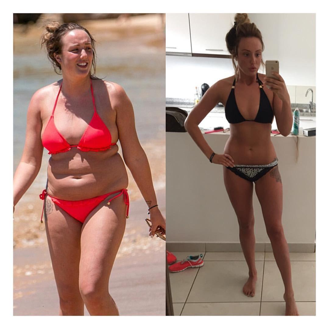 Aicm vor und nach dem Abnehmen