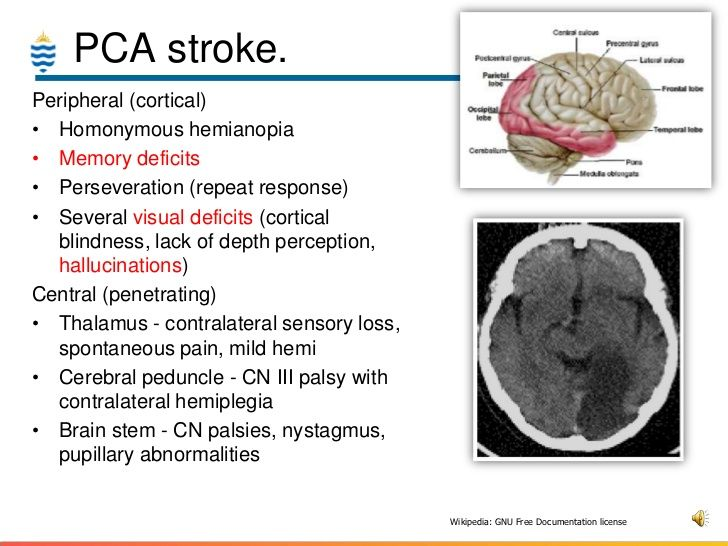 Image Result For Posterior Cerebral Artery Occlusion Neuro Anatomy
