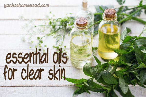 Essential Oils for Clear Skin - http://yankeehomestead.com/2014/10/27/essential-oils-for-clear-skin/