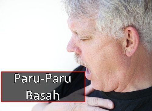 http://obatherbalkankerhati.net/1935/cara-alami-meredam-paru-paru-basah/