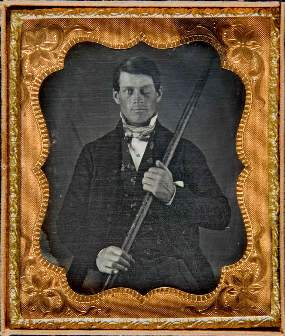 """A Rail Road labourer, Phineas Gage (1823–1860) survived an accident in 1848 in which a long iron rod was blasted by explosive through his bonce, destroying his brain's left frontal lobe.  He thus became inadvertently the first recipient of the sort of lobotomies and leucotomies so widely beloved of 1950's psychiatrists. The injury transformed and brutalised his personality so profoundly that former friends saw him as """"no longer Gage."""" It had made a mild-mannered man into a thug."""
