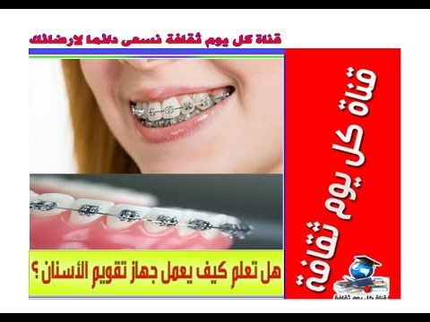 هل تعلم كيف يعمل جهاز تقويم الاسنان معلومات طبية Incoming Call Screenshot