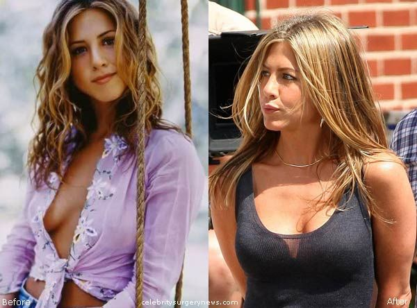 Share your jennifer aniston boob job photos can