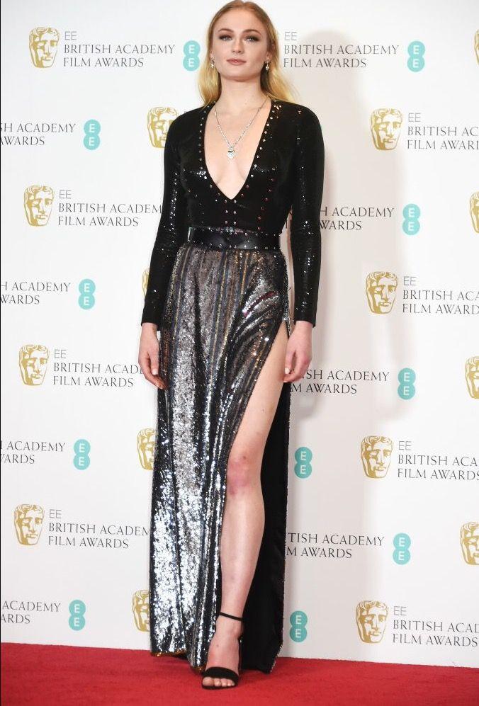 Sophie Turner at the 2017 BAFTA Awards