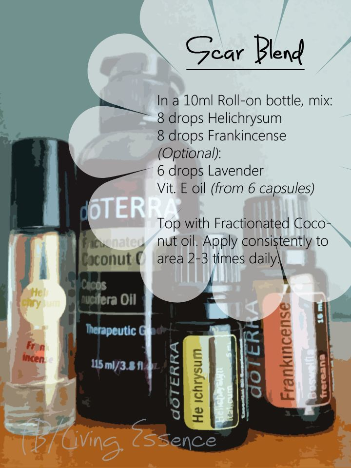 Pin by Nicole Goettel on Oils | Doterra essential oils