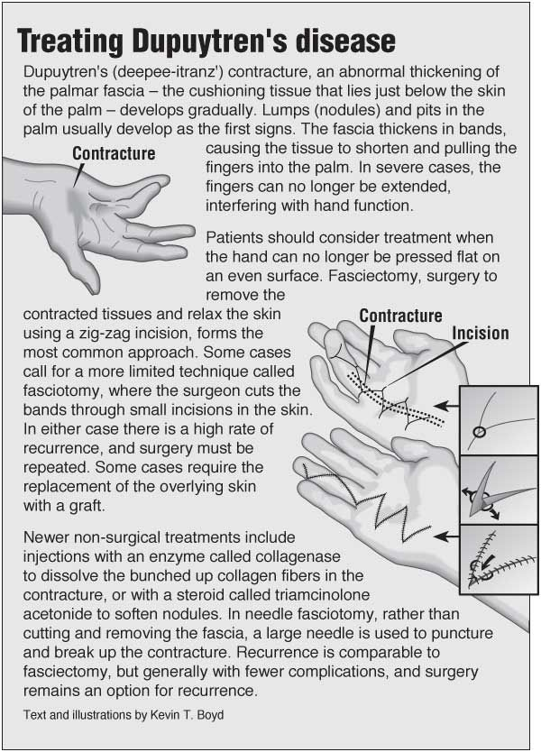 Information graphic about Dupuytren\'s contracture with links to ...