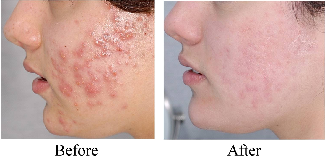 What A Difference Acne Gone And Scarring Will Fade With Continued Use Of Rejuvenation Serum Holistic Acne Treatment Acne Treatment Treating Adult Acne